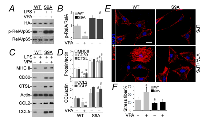 The podocyte protective activity of valproate is blunted in podocytes expressing a constitutively active mutant of GSK3β.
