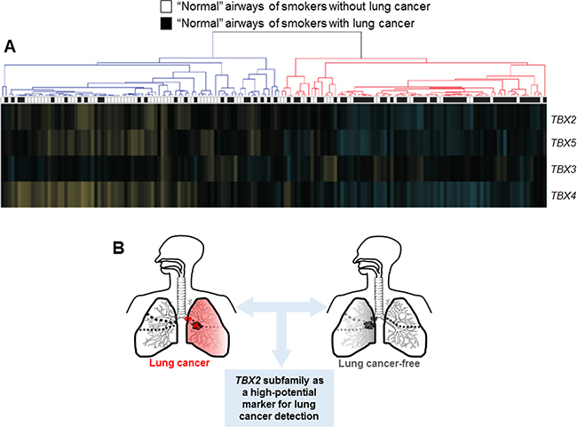 Suppression of the TBX2 subfamily in the airway field of injury in smokers.