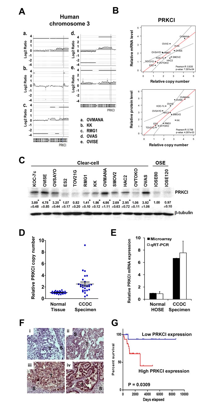 PRKCI amplification and overexpression in CCOC cells and patient specimens.
