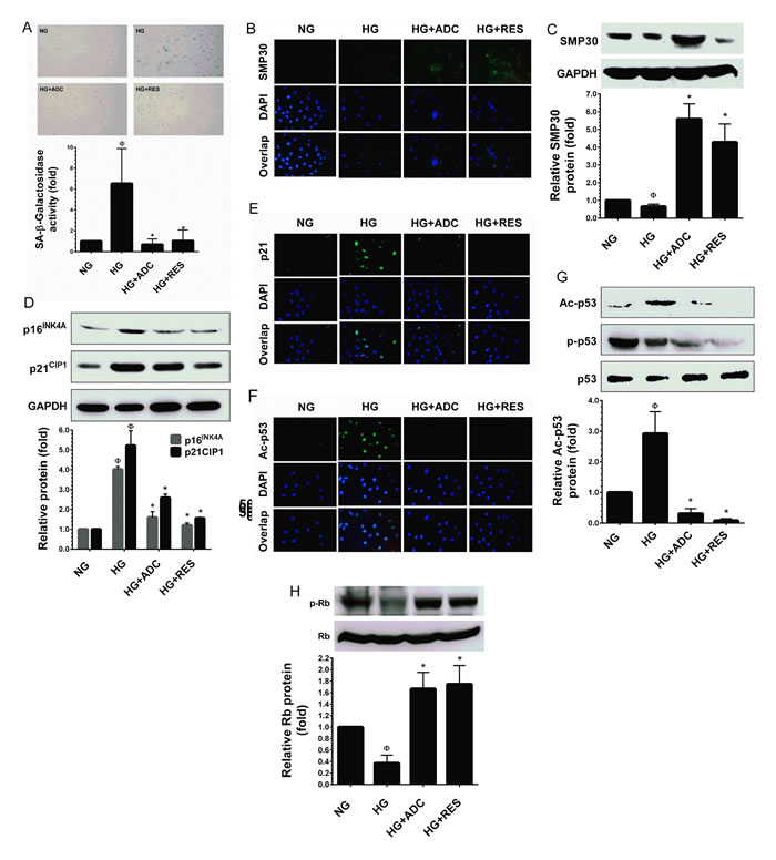 ADC prevents HG-induced senescence in HUVECs.