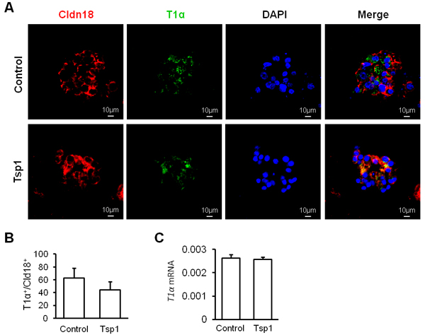 Tsp1 exhibits little effect on mouse AT2 cell differentiation.