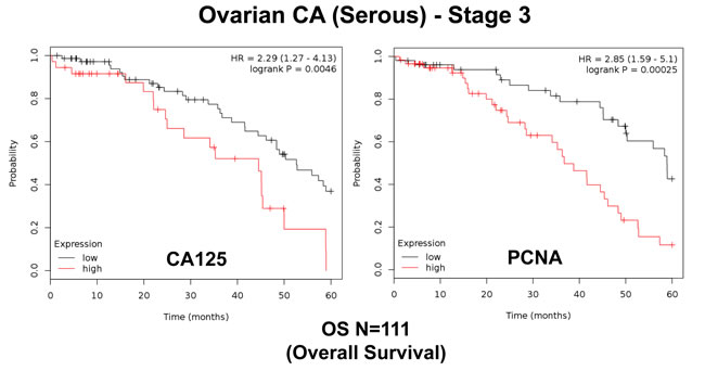Traditional markers (CA125 and PCNA) predict poor overall survival in ovarian cancer patients.