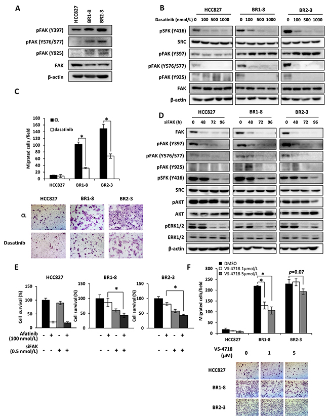 FAK activation in association with SRC in drug-resistant sublines.