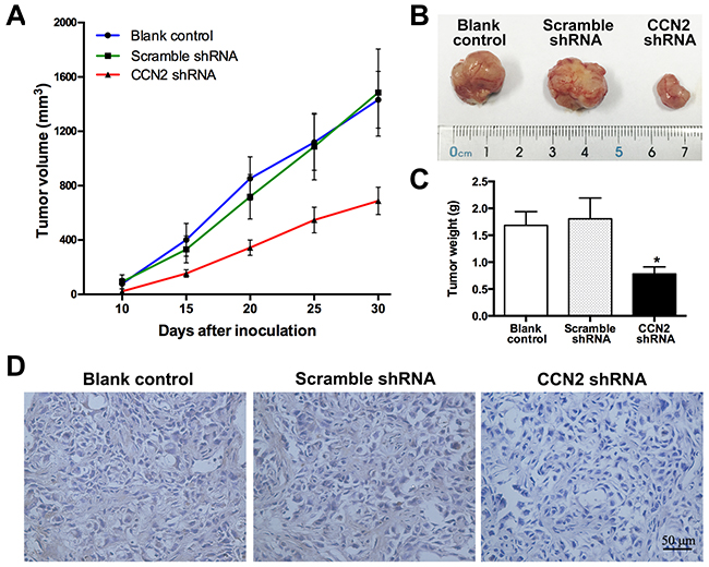Targeting of CCN2 attenuates xenograft tumor growth in vivo.