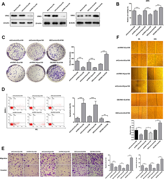 VRK1 is essential for the proliferation, survival, migration and invasion of ESCC cells.