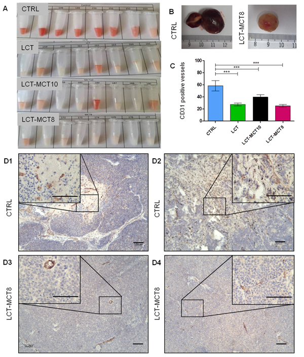 Macroscopic evaluation of intratumoral hemorrhage and microscopic evaluation of tumor vascularization revealed an anti-angiogenic effect of KDs.