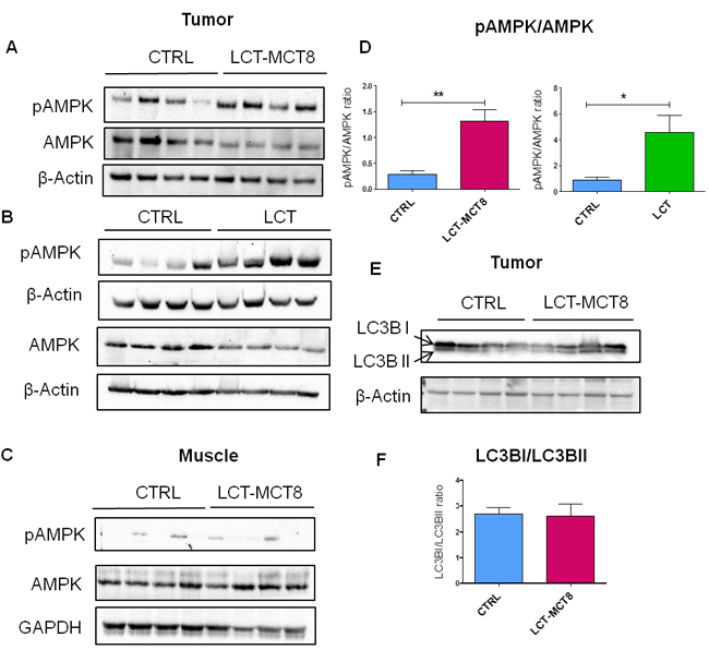 Western blot analysis of SK-N-BE(2) xenografts showed energy stress and lack of autophagy in LCT-MCT8 group compared to CTRL.