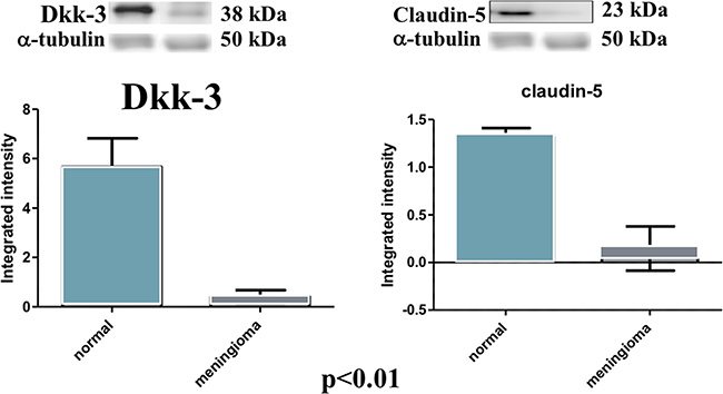 Evident decrease, at western blot analysis, of Dkk-3 and claudin-5 expression in the tissues of patients with meningiomas compared with control tissues.