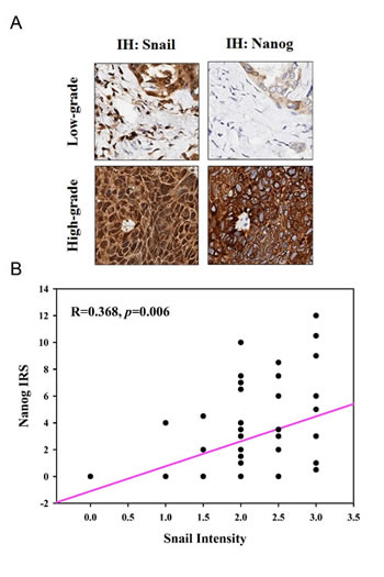 The expression of Snail and Nanog are highly correlated in lung cancer tissues.