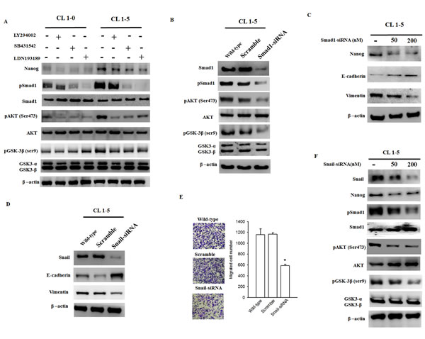 The Smad1/Akt/GSK3β pathway is consistently activated in CL1-5 cells but is downregulated in Snail-silenced CL1-5 cells.