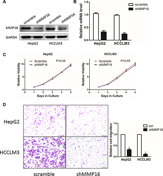 The effect of MMP16 on HCC cell proliferation and invasion.
