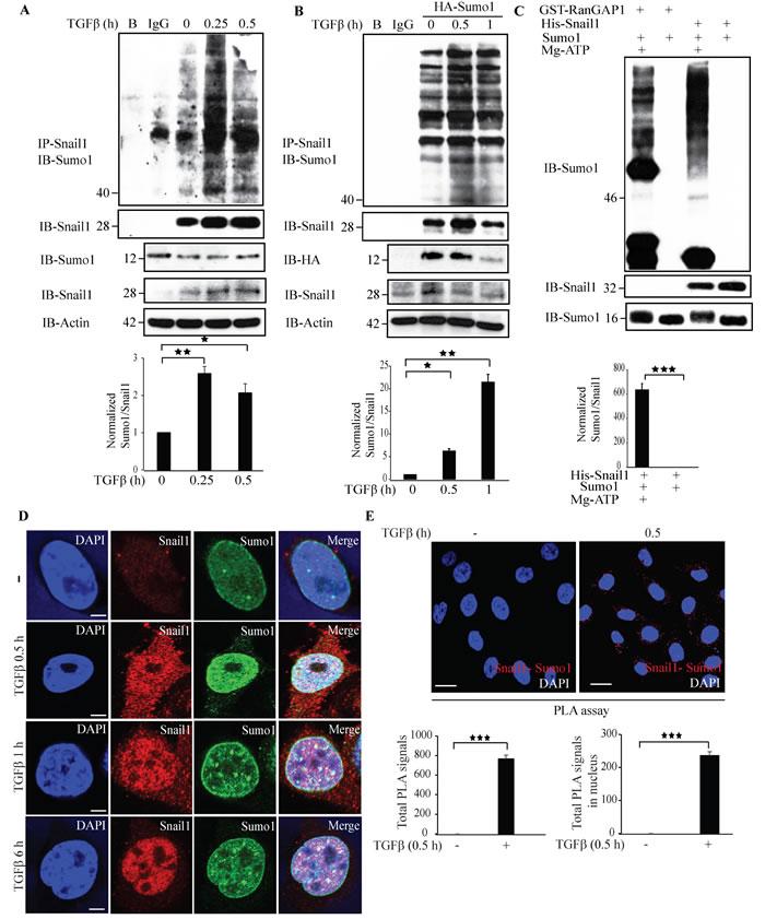 TGFβ stimulates sumoylation of Snail1.