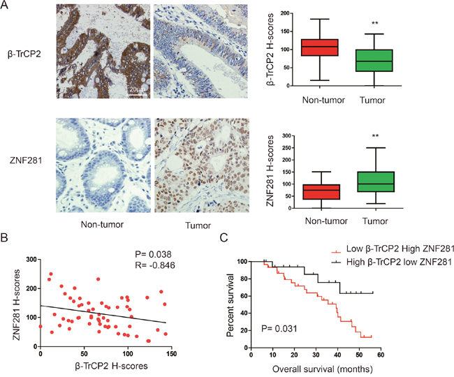 Expression patterns of β-TrCP2 and ZNF281 in human CRC.