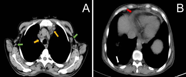 CT scan of the thorax showed multiple axillary (Figure 1A, green arrow), and mediastinal lymphadenopathy (Figure 1A, yellow arrow) in combination with right pleural effusion (Figure 1B, white arrow) and pericardial effusion (Figure 1B, red arrow).
