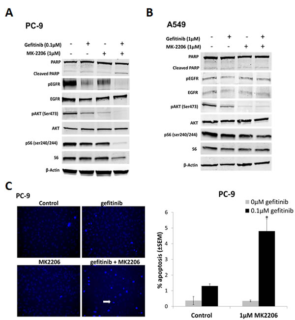 The effect of combining gefitinib and MK2206 on EGFR downstream signaling and apoptosis of NSCLC cells.