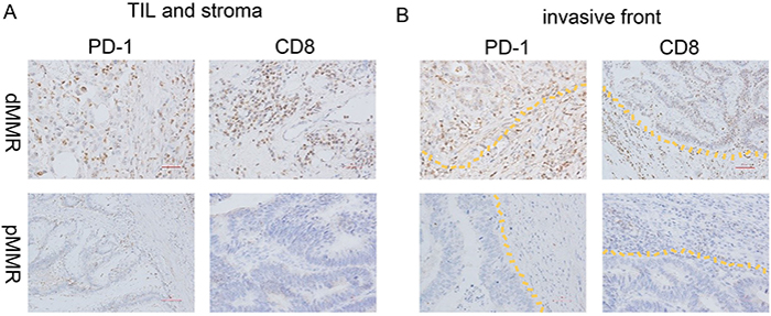 PD-1 and CD8 expression of dMMR and pMMR CRC specimens.
