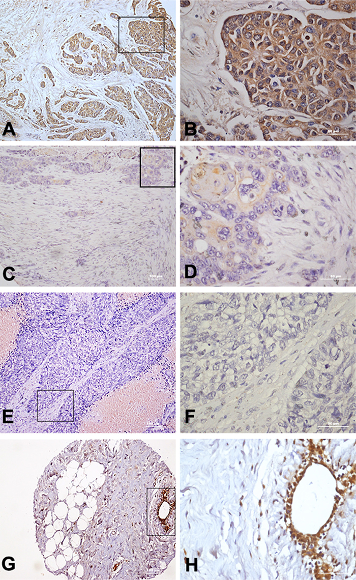 Immunohistochemical staining of TLR5 protein in breast cancer tissues.