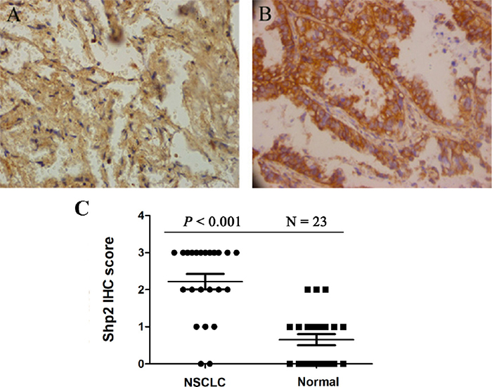 Shp2 expression is increased in non-small cell lung cancer (NSCLC).