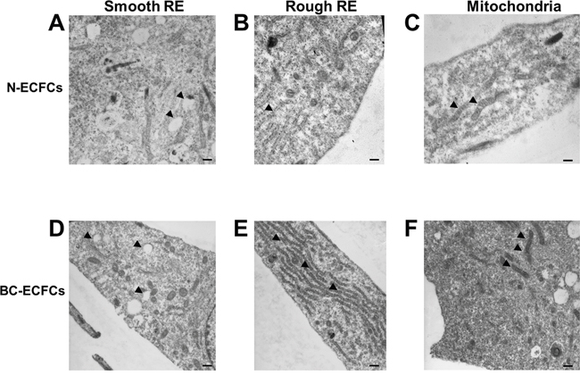 Ultrastructural remodelling in breast cancer-derived endothelial colony forming cells.