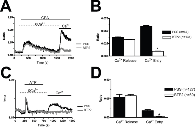 BTP2 inhibits store-dependent Ca2+ entry in breast cancer-derived endothelial colony forming cells.