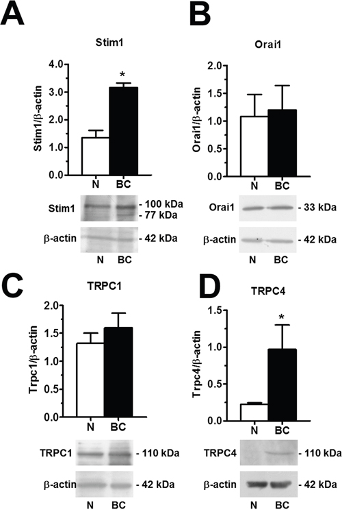 Orai1, Stim1, TRPC1 and TRPC4 proteins are up-regulated in breast cancer-associated endothelial colony forming cells.