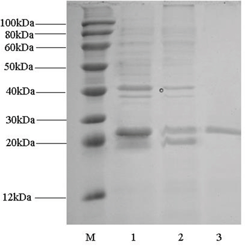 SDS-PAGE analysis of fractions during Rim J purification. Lane M: marker; lane