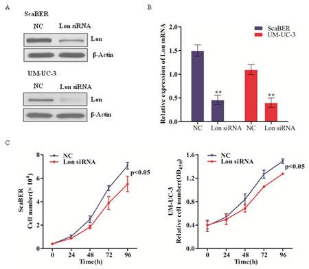 Lon depletion inhibited bladder cancer cell proliferation.