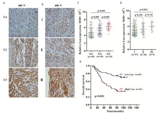 Immunohistochemical (IHC) staining of Lon protein in bladder cancer tissues and