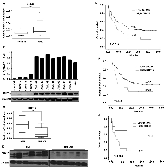 Prevalence and prognostic impact of DHX15 overexpression in acute myeloid leukemia.