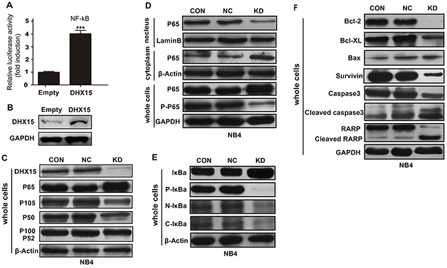 Effects of DHX15 silencing on the NF-kB signaling pathway.