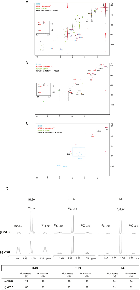 The effect of VEGF in lactate metabolism in AML cell lines.