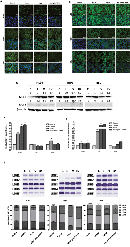 Expression of MCT1, MCT4 and LDH isoenzymes under lactate and VEGF stimuli.