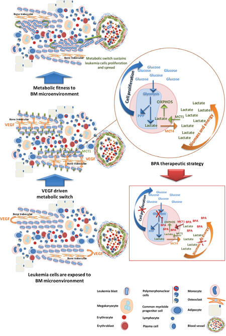 AML subsets benefit from BM microenvironment to proliferate and carry on disease progression- bromopyruvic acid (BPA) metabolic therapeutic strategy.