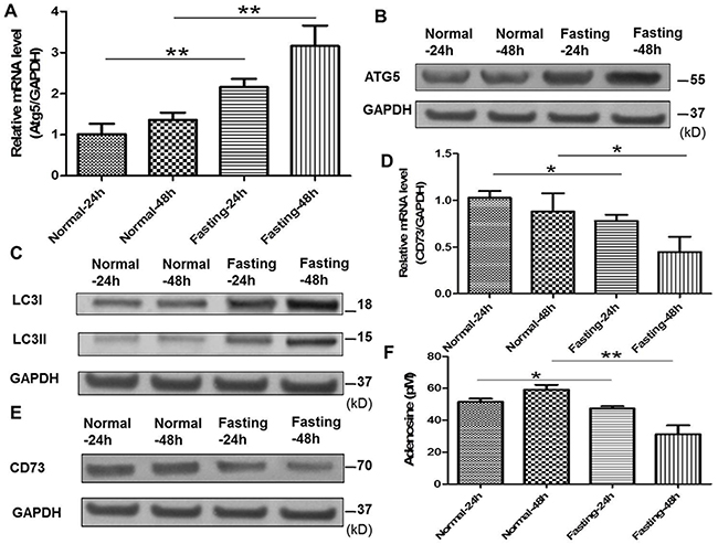 Fasting induces cancer cell autophagy, downregulates CD73 expression of cancer cells and suppresses adenosine generation in vitro.