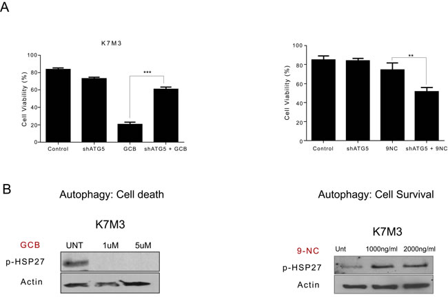 Variation in phosphorylated heat shock protein 27 (HSP27) expression after treatment with gemcitabine (GCB) or 9-nitrocamptothecin (CPT) correlates to whether blocking autophagy will lead to survival or death in K7M3 osteosarcoma cells.
