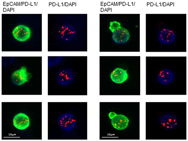 Illustrative examples of fluorescence in situ hybridization (FISH) for PD-L1 in CETCs from breast cancer patients.