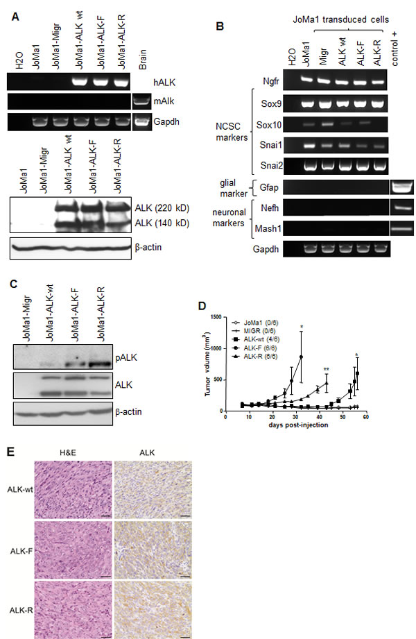 ALK-wt-, ALK-F1174L-, and ALK-R1275Q-expressing JoMa1 cells