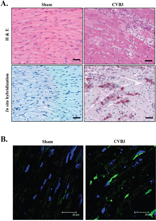 CVB3 infection causes accumulation of pre-amyloid oligomers in virus-infected mouse heart.
