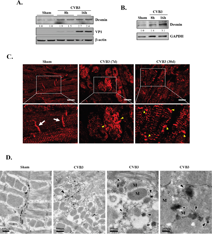 CVB3 infection leads to increased protein levels of desmin in vitro and results in the disruption of desmin structures in vivo.