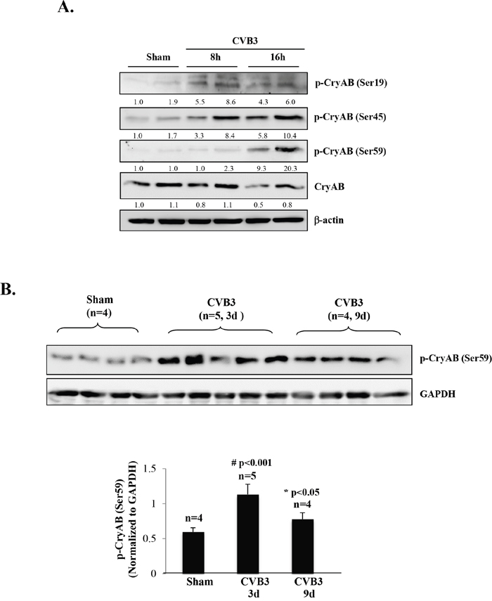 CVB3 infection results in phosphorylation of CryAB.