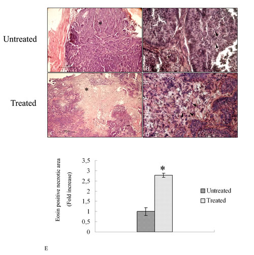 Hematoxylin and eosin stained histopathalogical sections of 4HPR-HSA untreated and treated tumors