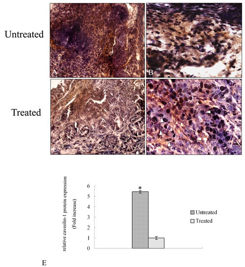 Immunohistochemical analysis of caveolin -1 protein in tumor sections.