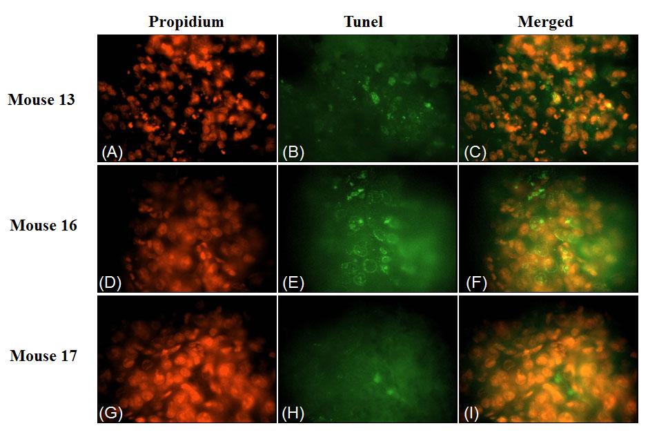 TUNEL assay apoptosis of 4HPR-HSA tumor tissue.