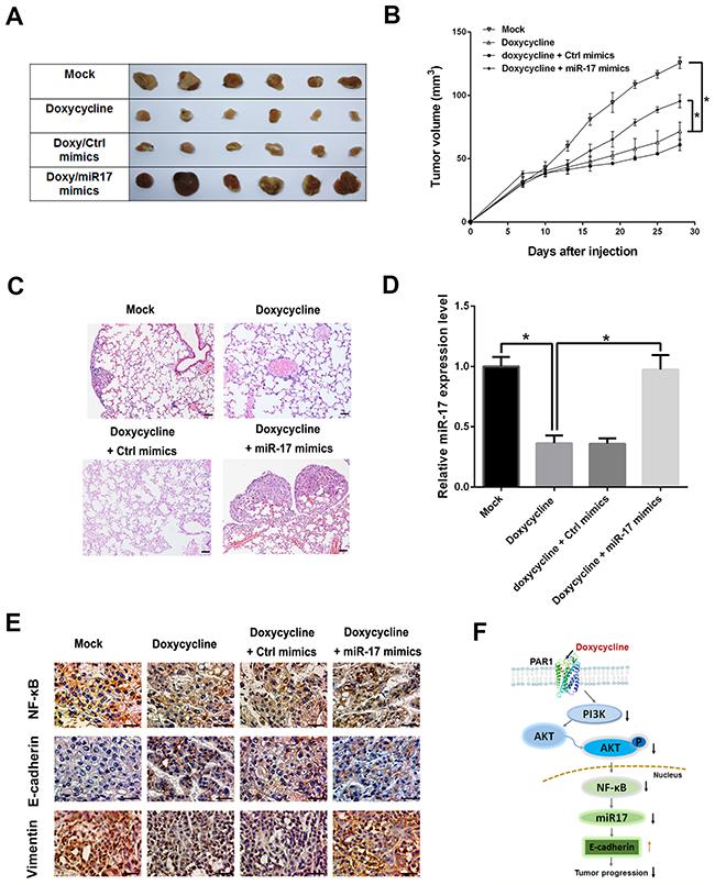 Doxycycline inhibits tumor progression, whereas miR-17 reverses inhibitory effect of doxycycline.