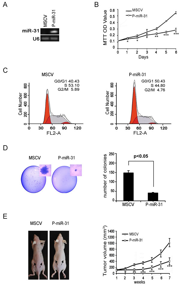 Restoring miR-31 expression inhibits DAOY cell growth, colony formation and xenograft tumorigenesis.