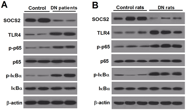 Renal expression of SOCS2, TLR4 and NF-κB in DN patients and DN rats.