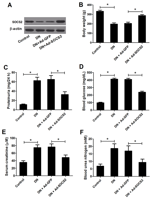 Effect of SOCS2 overexpression on diabetic renal injury.