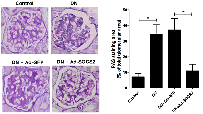 Effect of SOCS2 overexpression on renal injury of DN rats as assessed by PAS staining.