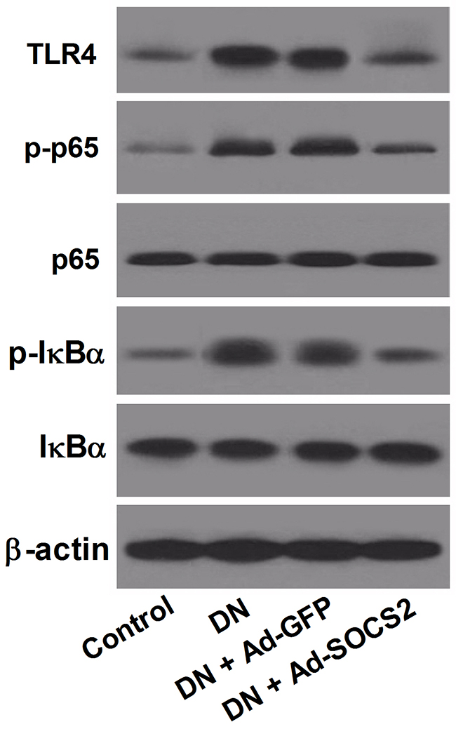 Effect of SOCS2 overexpression on the TLR4/NF-κB signaling pathway in DN rats.
