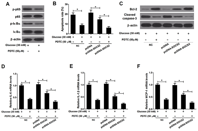 Effect of PDTC on apoptosis and inflammatory cytokines expressions in HG-stimulated podocytes transfected with pcDNA-SOCS2.